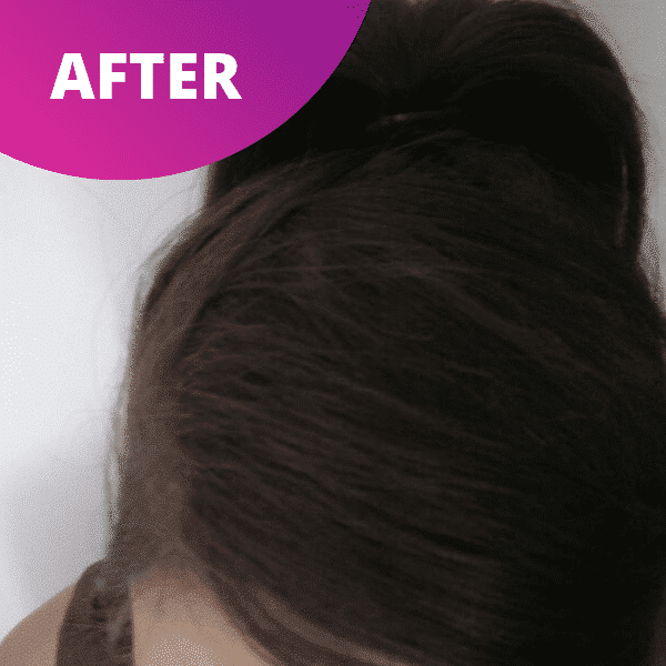 After - Lupus Hair Oil - Hair Gains - Lupus Health Shop
